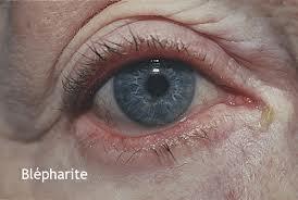 Blépharite - Symptômes et Traitements