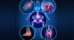 super aliments qui éliminent rapidement les douleurs d'Arthrite