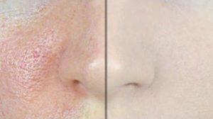 Recettes pour faire disparaître les pores naturellement