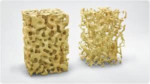Comment réduire l'ostéoporose grâce aux vitamines